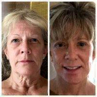 A Facelift Can Be Performed In Our Office Under Local Anesthesia