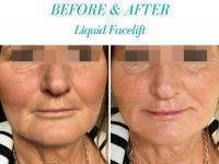 Before & After Liquid Facelift Photo
