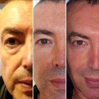 Hifu Facelift Side Effects 187 Facelift Info Prices