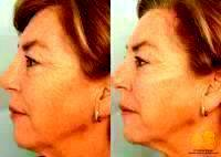 Before And After Liquid Dermal Fillers