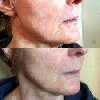 What words..., Microcurrent facial before and after join
