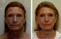 Before And After Plastic Face Surgery With Dr. William R. Burden