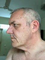 Before Male Facelift