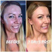 Botox 7 Days After