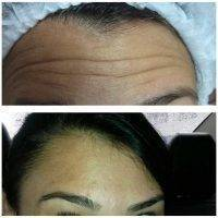 Botox Before And After Allergan (1)