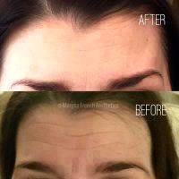 Botox Before And After Allergan (2)