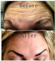 Botox Before And After Allergan (3)