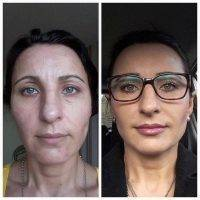 Botox Before And After Allergan (4)