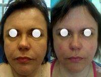 Botox Before And After Allergan (5)
