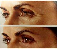 Botox Before And After Crows Feet Photo (1)
