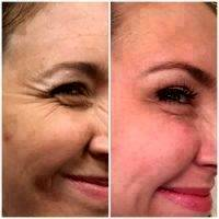 Botox Before And After Crows Feet Photo (2)