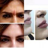 Botox Before And After Face (1)