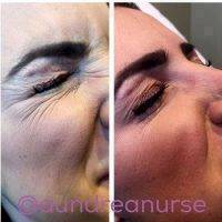 Botox Before And After Face (11)