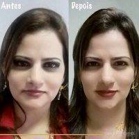 Botox Before And After Face (12)