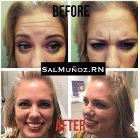 Botox Before And After Face (4)