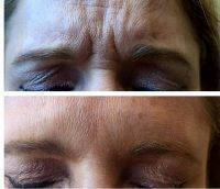 Botox Before And After Face (7)