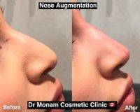 Botox Before And After Face (8)