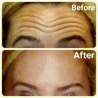 Botox Before And After Forehead (1)