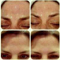 Botox Before And After Forehead (2)