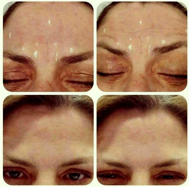 Botox Before And After Forehead (2) » Facelift: Info ...