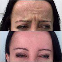 Botox Before And After Forehead (5)