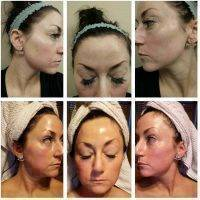 Botox Before And After Forehead (6)