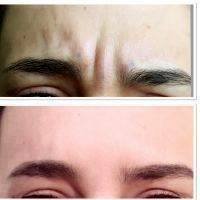 Botox Before And After Forehead (7)