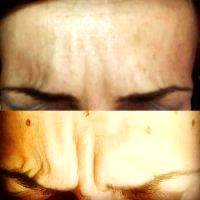 Botox Before And After Images (1)