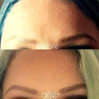 Botox Before And After Images (3)