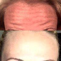 Botox Before And After Images (4)