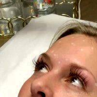 Botox Before And After Images (5)