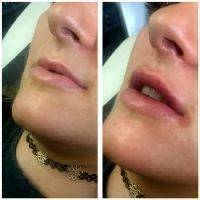 Botox Before And After Lip Injection