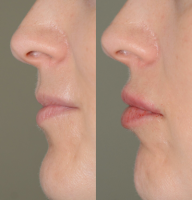 Botox Before And After Lip Injections