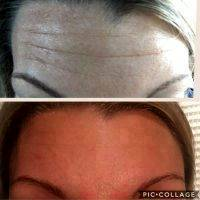 Botox Before And After Pics Forehead (10)