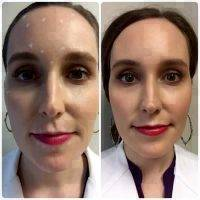 Botox Before And After Pics Forehead (12)