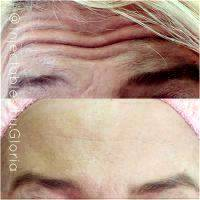 Botox Before And After Pics Forehead (4)
