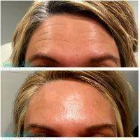 Botox Before And After Pics Forehead (5)