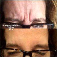 Botox Before And After Pics Forehead (9)