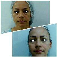 Botox Before And After Pictures (2)