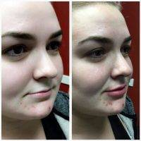Botox Before And After Pictures (3)