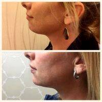 Botox Before And After Pictures (4)
