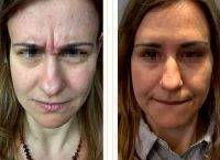 Botox Before And After Pictures Forehead (1)