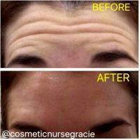 Botox Before And After Pictures Forehead (2)