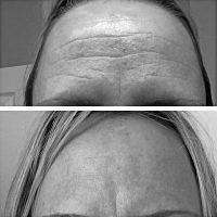 Botox Before And After Pictures Forehead (3)