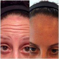 Botox Before And After Pictures Forehead (4)