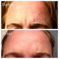 Botox Before And After Pictures Forehead (5)
