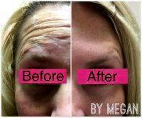 Botox Before And After Pictures Forehead (6)