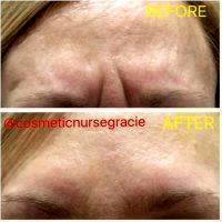 Botox Before And After Pictures Forehead (7)