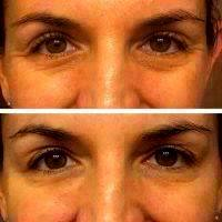 Botox Before And After Under Eyes