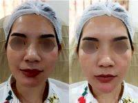 Botox Before And After Wrinkles